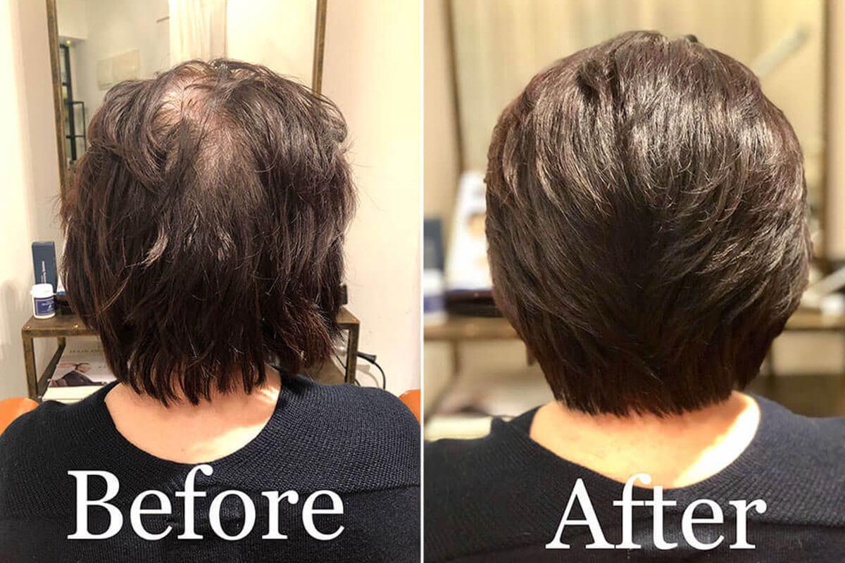 南森町の美容院(美容室)コハクは女性でも急増中「薄毛・抜け毛」の悩みを解消!イメージ