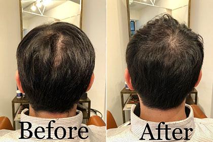 頭皮環境改善スパ + Barberカット 男性客イメージ